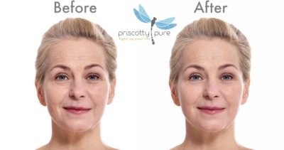 Before and After Priscotty Pure Youthification™