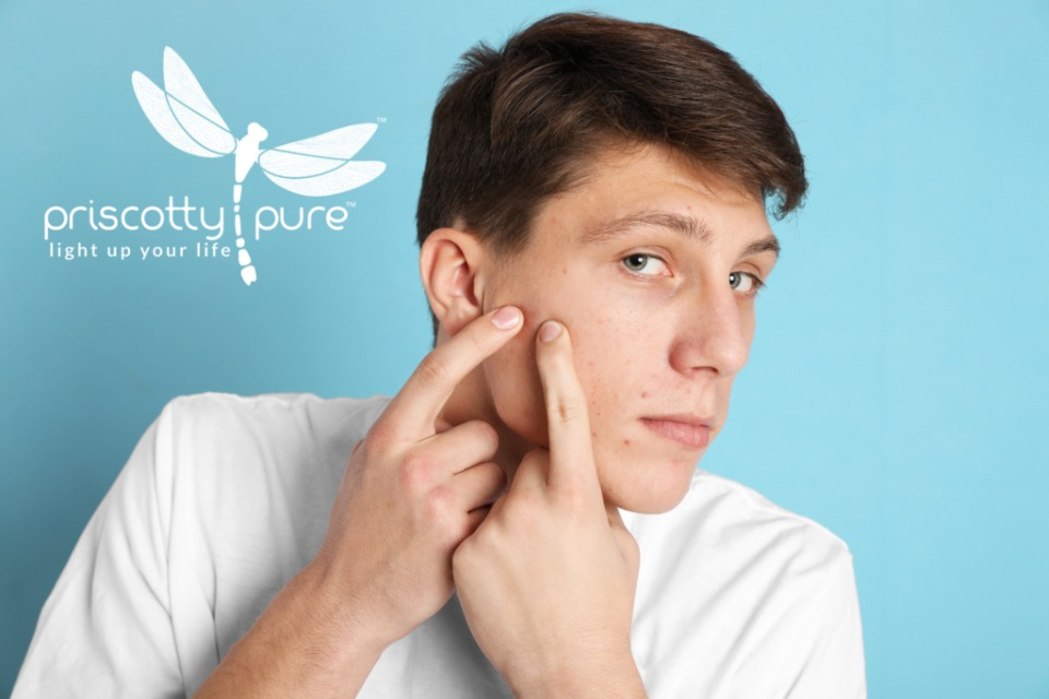 CBD for Acne: Studies Show Promising Results